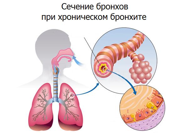 Принципы лечения и профилактики острых и хронических бронхитов thumbnail